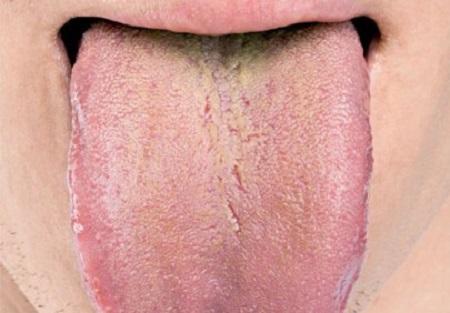 povlak-na-jazyku