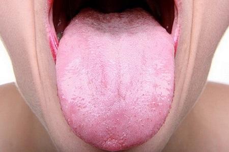 bledý-jazyk